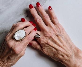 Por qué se duermen las manos